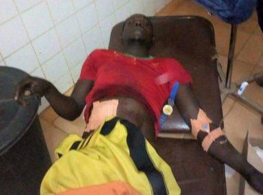 Un homme gay gravement blessé dans le raid. (Photo de l'Association jeunes solidaire de Garoua)