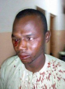 Cet homme gay a perdu son oeil dans le raid. (Photo de l'Association jeunes solidaire de Garoua)