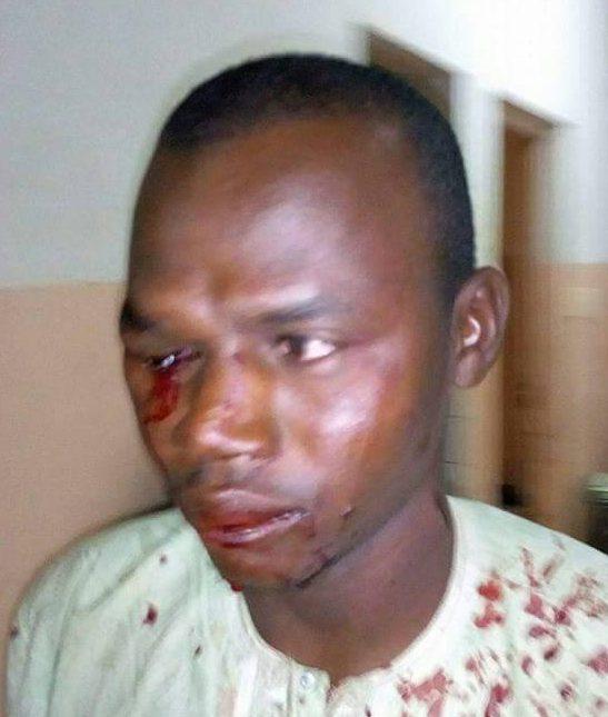 LGBTI au Cameroun : Des soldats attaquent. Bilan : 3 blessés, 1 mort
