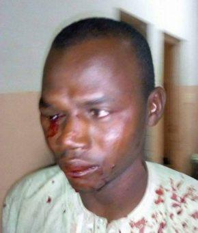 LGBTI au Cameroun : Des soldats attaquent. Bilan : 3 blessés, 1mort