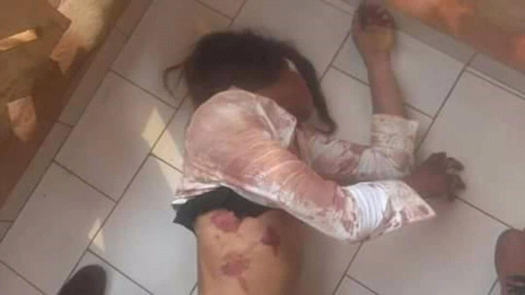 Cameroun : Une femme transgenre battue à demi-mort