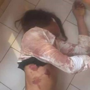 Cameroun : Une femme transgenre battue àdemi-mort