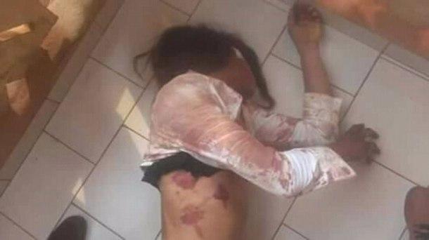 Dolores attaquée le 14 juillet 2018.