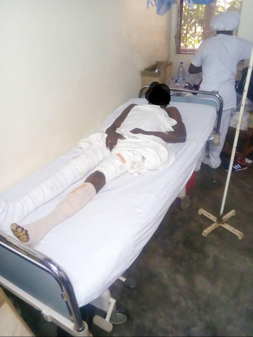 Grièvement blessé, un homme gay veut sortir du Cameroun